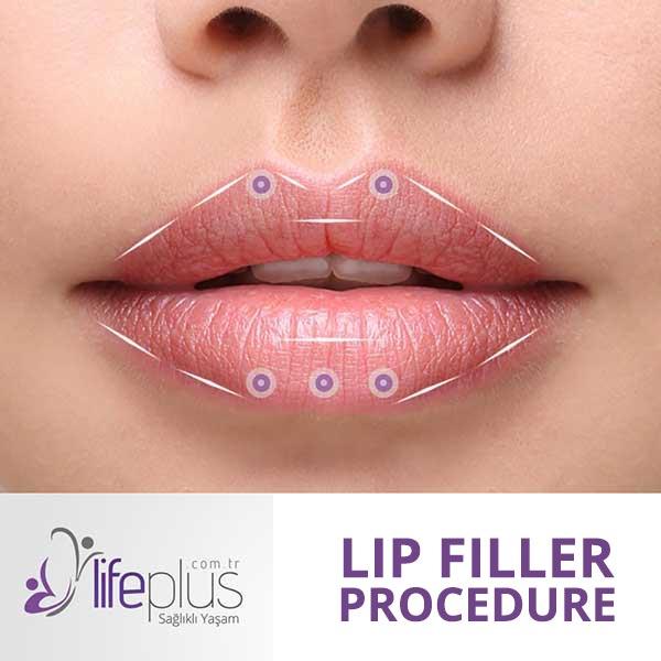 Lip Filler Nişantaşı - Lifeplus