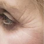 Estetik Botoks Tedavisi 6