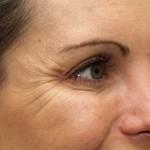 Estetik Botoks Tedavisi 8
