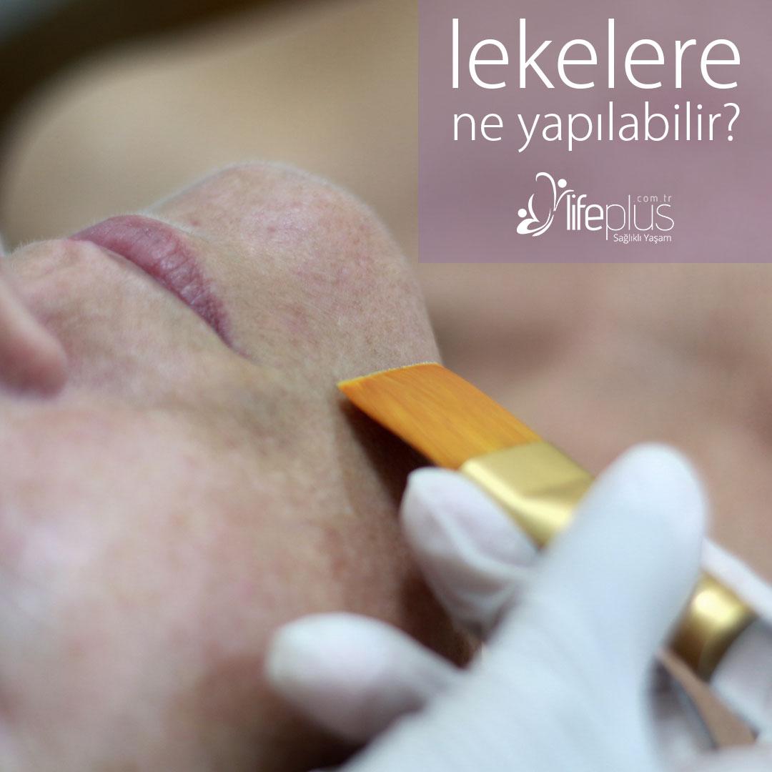 Cilt lekeleri - Dr. Ahmet Karaçam