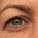 Üst Göz Kapağı Tedavisi 2