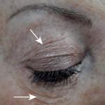 Üst Göz Kapağı Tedavisi