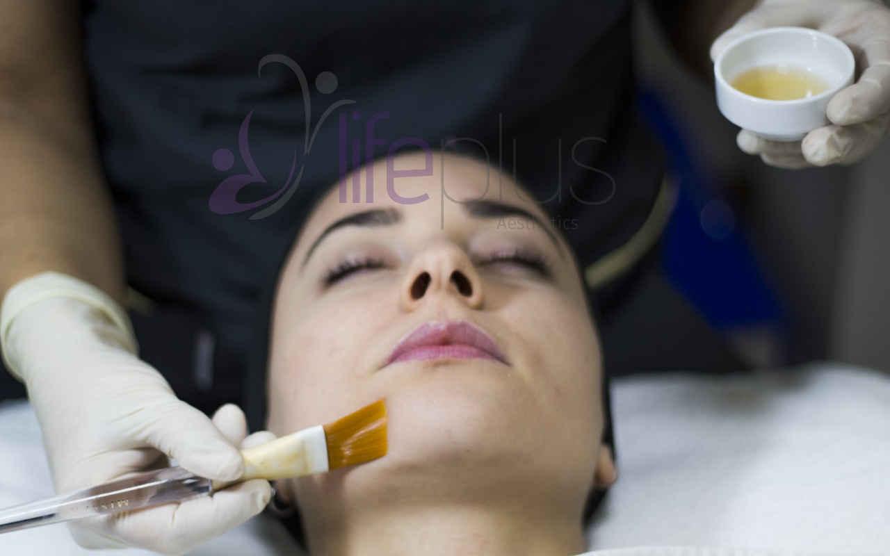 Medical Peeling - Lifeplus Nişantaşı