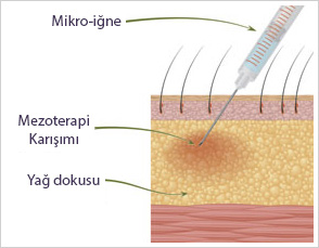 Saç Mezoterapisi 4
