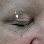 Üst Göz Kapağı Tedavisi 3