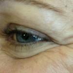 Göz Çevresi Kırışıklık Tedavisi 2