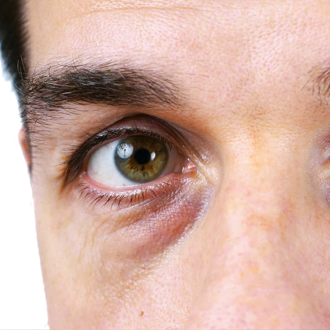 Göz altı torbası tedavisi - Lifeplus